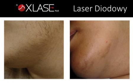 epilacja-laserowa-wlosow-ciemnych-1
