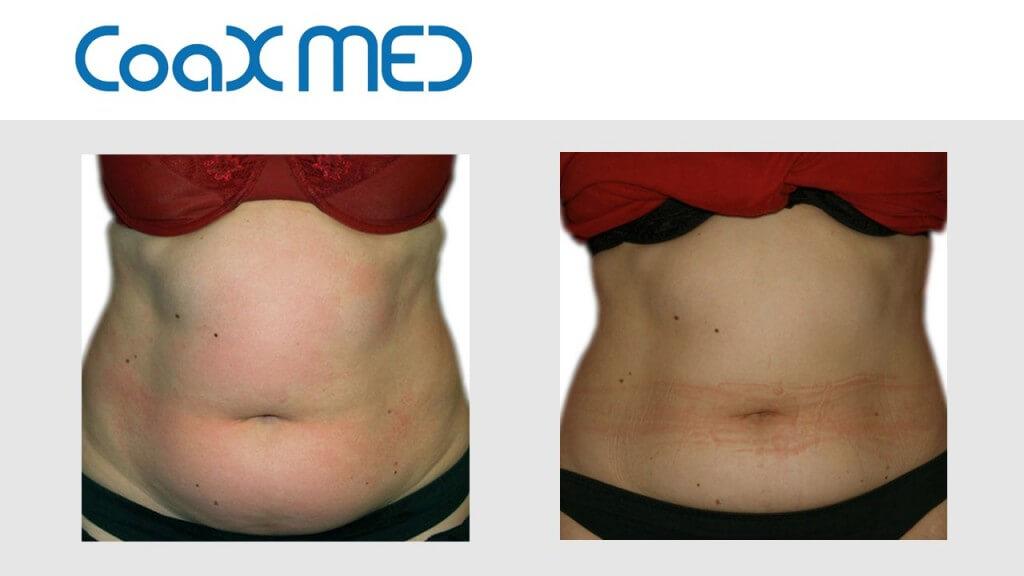 Kriolipoliza - zamrażanie tłuszczu