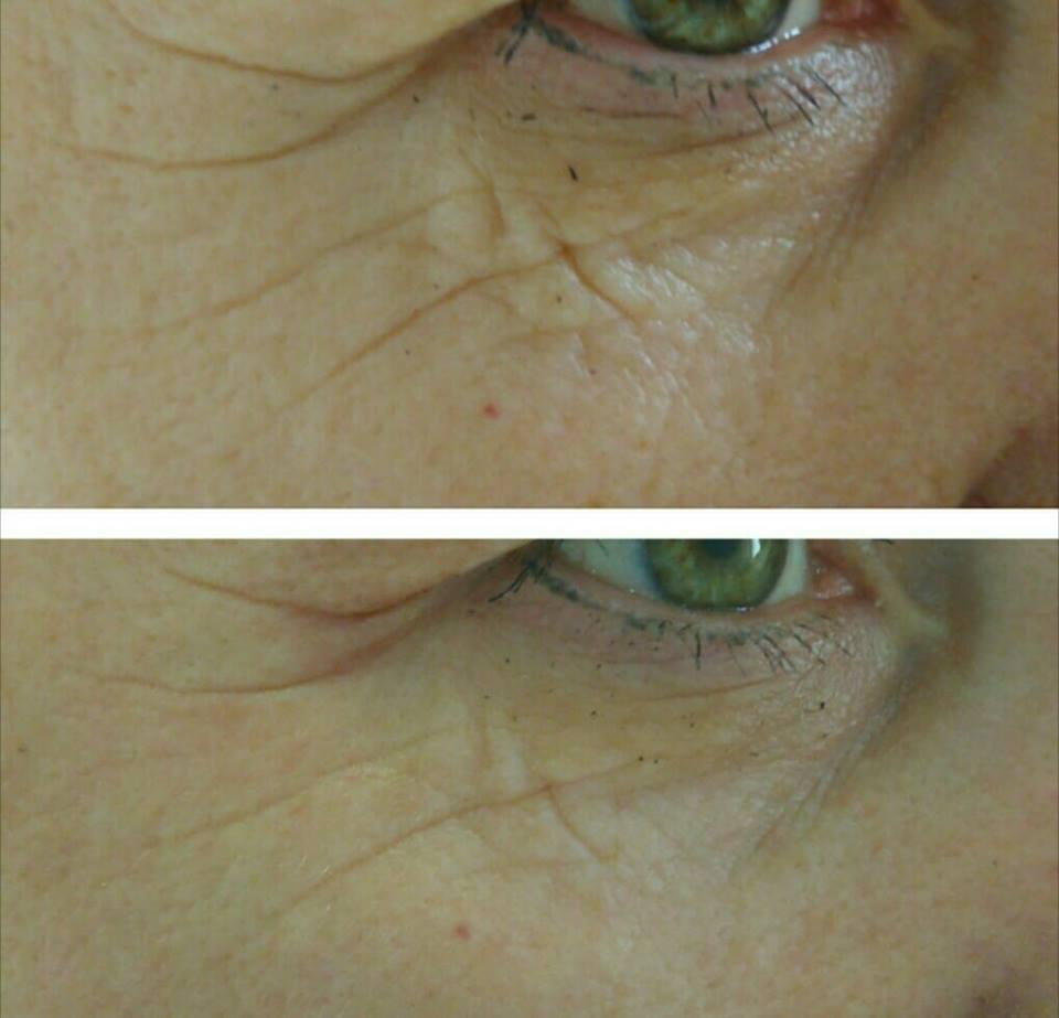 plazma azotowa okolica oka